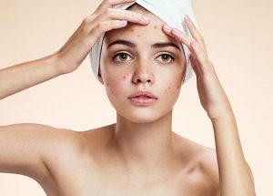 perawatan kulit berjerawat